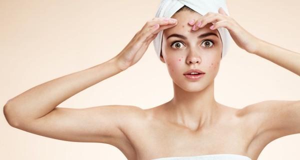 Mituri despre acnee desfiintate de specialisti