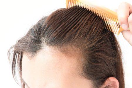 Cauze ale pierderii părului – Și ce puteți face in legatura cu asta